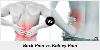 Not All Back Pains Are Due To Kidneys Hyderabadurology